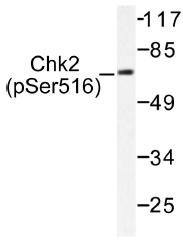 AP01555PU-N - CHK2