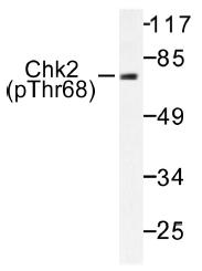 AP01556PU-N - CHK2