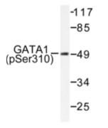 AP01591PU-N - GATA1