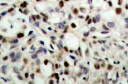 AP01566PU-N - CREB1