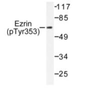 AP01585PU-N - Ezrin