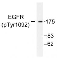 AP01576PU-N - EGFR / ERBB1