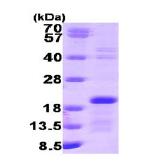 AR09128PU-L - Interleukin-2 / IL2