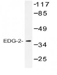 AP01253PU-N - EDG2 / LPAR1