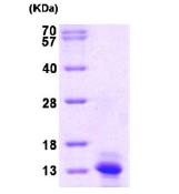AR09134PU-L - MCP1 / CCL2