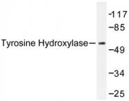 AP06586PU-N - Tyrosine 3-monooxygenase (TH)