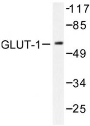 AP06144PU-N - GLUT1 / SLC2A1