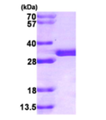 AR09168PU-L - Sepiapterin reductase / SPR