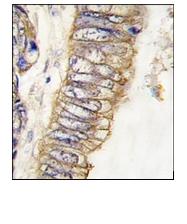 AM11002PU-N - HGF receptor