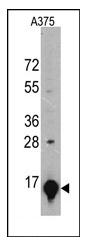 AM11026SU-N - Galectin-1