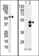 AP15284PU-N - Protein phosphatase 1F / PPM1F