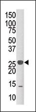 AP15279PU-N - DUSP14 / MKP6