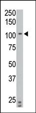 AP15236PU-N - PTPRN2