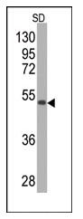 AM11059PU-N - Superoxide dismutase 2 / SOD2