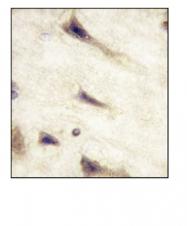 AM11061PU-N - EPHA5