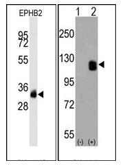 AM11064PU-N - EPHB2