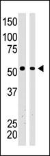 AP15189PU-N - BAIAP2