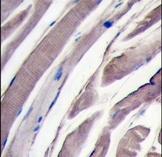 AP15124PU-N - Hexokinase-2