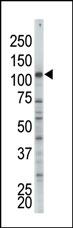 AP15125PU-N - Hexokinase-2