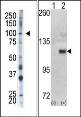 AP15128PU-N - Hexokinase-1
