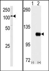 AP15129PU-N - Hexokinase-1