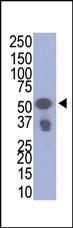 AP11022PU-N - VSV-g Epitope Tag (YTDIEMNRLGK)