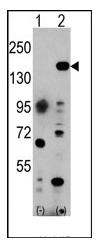 AP11025PU-N - EHMT1