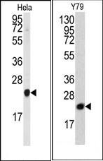 AP15047PU-N - PEBP1 / RKIP