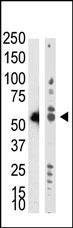 AP11029PU-N - DNMT2 / TRDMT1