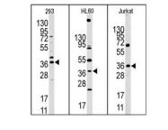 AP11042PU-N - HIF1AN / FIH1