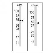 AP11043PU-N - HIF1AN / FIH1