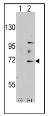 AP11146PU-N - MYST2