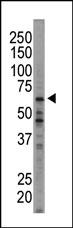 AP15010PU-N - EIF2AK1 / HRI