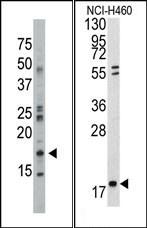 AP15029PU-N - NDP kinase B / NME2