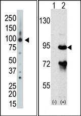 AP15036PU-N - ARHGAP26 / OPHN1L