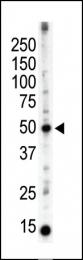 AP15041PU-N - PACSIN3