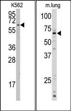 AP14897PU-N - CYP1A1