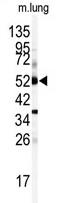 AP14898PU-N - CYP1A1