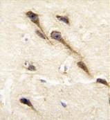 AP14899PU-N - CYP26B1