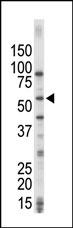 AP14844PU-N - MAP3K8 / TPL-2