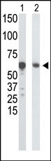 AP14757PU-N - Glucokinase / Hexokinase-4