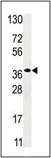 AP13842PU-N - Ribokinase / RBKS