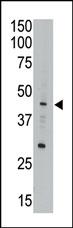 AP11341PU-N - APOBEC3G