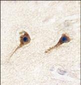 AP14668PU-N - SARS2 / SerRSmt