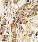 AP14675PU-N - Isoleucyl-tRNA synthetase / IARS2