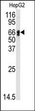 AP14695PU-N - Angiotensinogen
