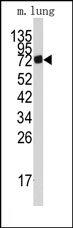 AP14716PU-N - AMP deaminase 3 / AMPD3