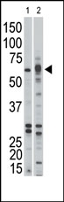 AP14598PU-N - Activin receptor type 1B / ACVR1B