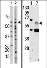 AP14607PU-N - Activin receptor type 1 / ACRV1