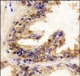 AP14613PU-N - B-Raf proto-oncogene
